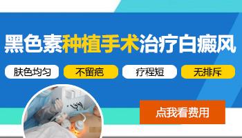 中国治疗白癜风比较好的医院有那些