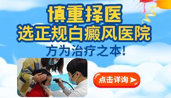 邯郸有几家白癜风医院
