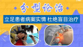 邯郸白癜风医院 白斑病能治好吗