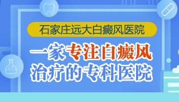 邯郸市哪里治疗白癜风