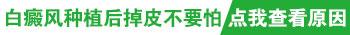 邯郸白癜风医院网站