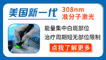 河北邢台白癜风医院 治疗白癜风的费用