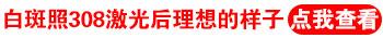 邢台白癜风照射308激光一次费用