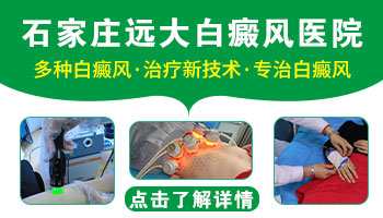 邢台市白癜风治疗方法