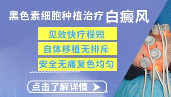 邯郸比较好的白癜风医院 邯郸治疗白癜风要多少钱