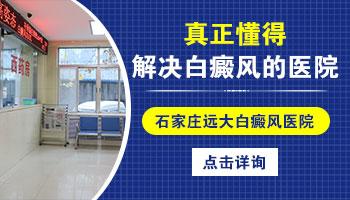 邯郸治疗白癜风医院 得了白癜风怎么治
