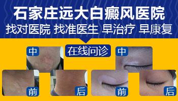 邯郸白癜风中医院的治疗方法