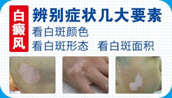 邢台白斑症状 邢台手部白斑如何治疗