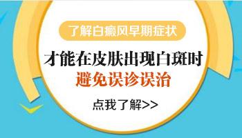 邢台白斑症状 邢台早期白癜风的症状表现