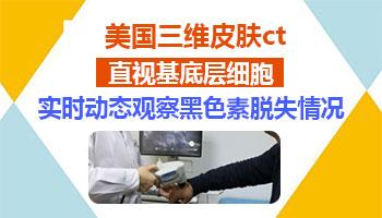 邢台专治白癜风医院官网