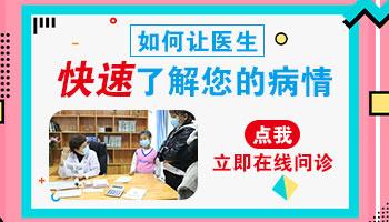 石家庄白癜风医院医生在线咨询
