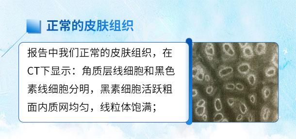 专家来啦!!特邀白癜风专家——苏有明教授将于4月5日来院会诊