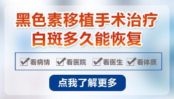 邯郸市治疗白癜风好的专科医院
