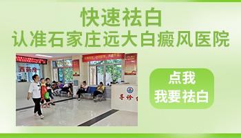 中国好的白癜风三甲医院在哪里