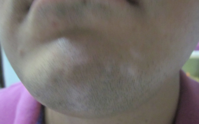 白癜风医生能用肉眼分辨白斑吗