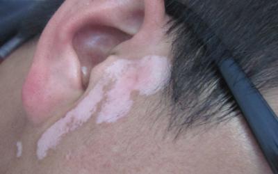 耳根白是怎么回事 发白的皮肤是白癜风吗