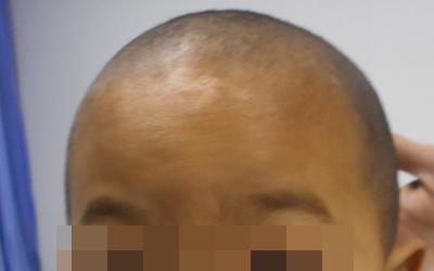 小孩额头有很多针尖大的小白点