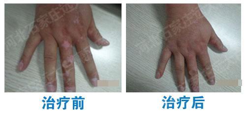 手指上有白色的小块不疼不痒是什么