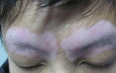 白斑在面部眉毛附近是不是白癜风怎么辨别