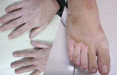 手指末端和脚趾头上都有白斑是什么病