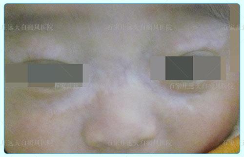 婴儿鼻子两边发白是得了白癜风吗