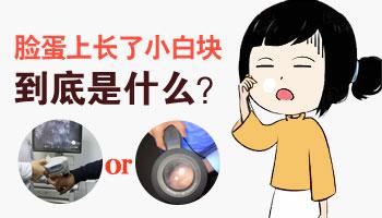 左脸颊白斑是什么 伍德灯和皮肤镜能检查出来吗