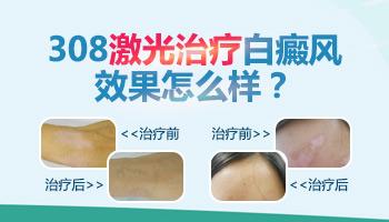 美国308准分子激光治疗白斑怎么收费