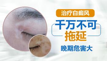 宝宝脸蛋上长白斑咋办啊能治好吗