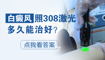 308治疗白斑多久见效 好转有什么征兆