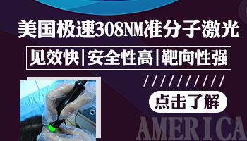 美国极速308多少钱 白癜风治好需要多久