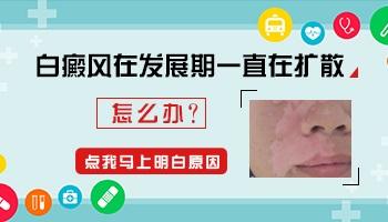 脸上腰部手脚都有白癜风还在发展期如何治疗
