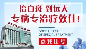 远大医院是公立的白癜风医院吗