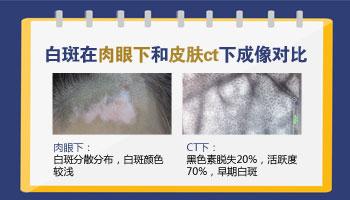 毛囊型白斑的图片 怎么治白斑才能消失