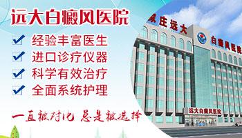 河北省有哪几家医院专门治白癜风