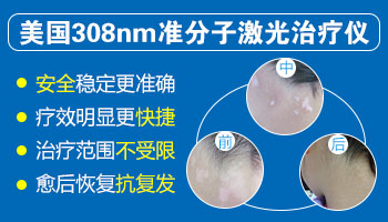 孕妇白癜风能做308激光吗 308激光有辐射吗