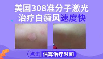 308准分子激光治疗仪治白癜风的效果