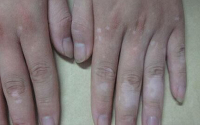 24岁男性手指上有白癜风怎么治