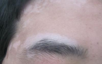 眉毛部位的皮肤白了照308作用大吗