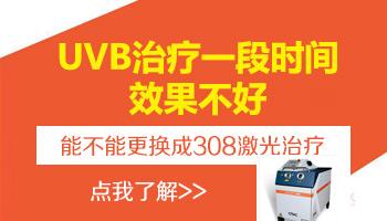uvb光疗仪照射白斑的危害性