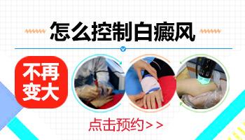 肢端末梢型白斑如何控制不扩散