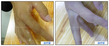 右手食指长白斑半年了怎么治疗效果好