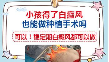 儿童肚皮白癜风能做植皮手术吗