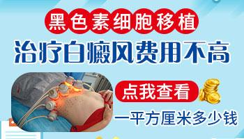 白癜风的植皮手术多少钱