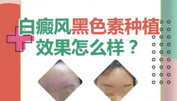 黑色素种植术后白斑皮肤恢复效果