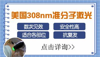 脸上白癜风照308准分子激光多少钱一个光斑