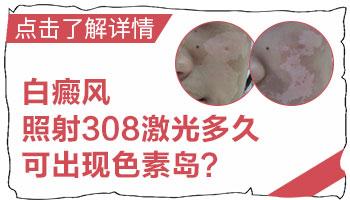 卤米松治疗白癜风多久能见效
