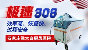 308治疗仪照白癜风照久了会得皮肤癌吗
